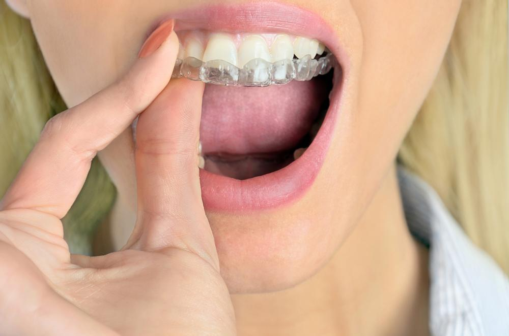 Invisalign | Saticoy Plaza Dentistry