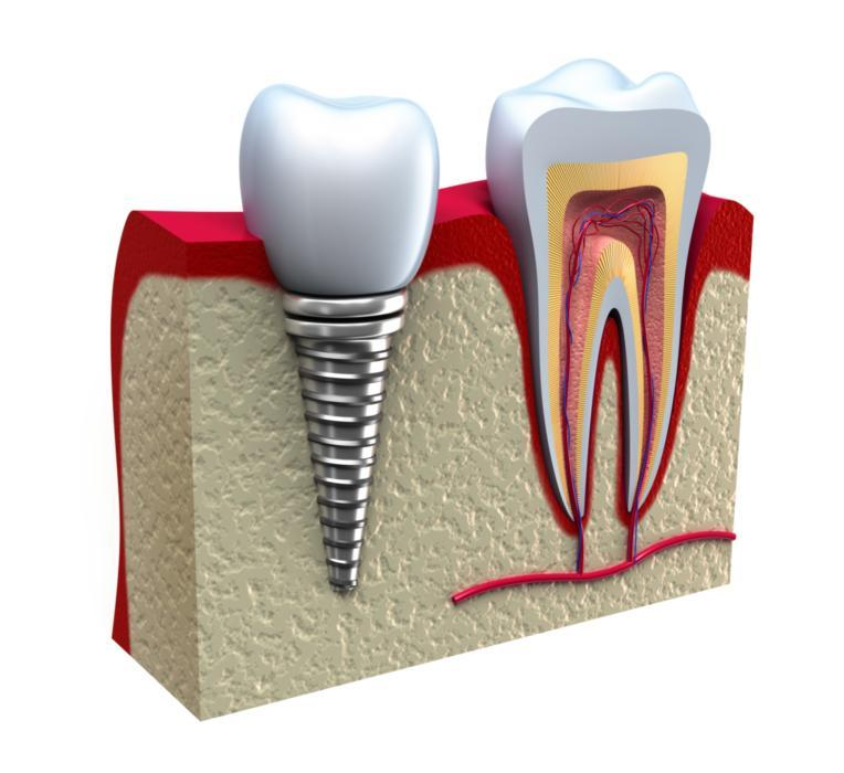 Benefits of Dental Implants | Saticoy Plaza Dentistry