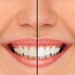 Van Nuys Teeth Whitening | Saticoy Plaza Dentistry
