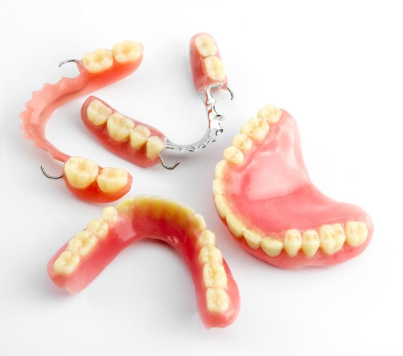 Denture Stability | Saticoy Plaza Dentistry