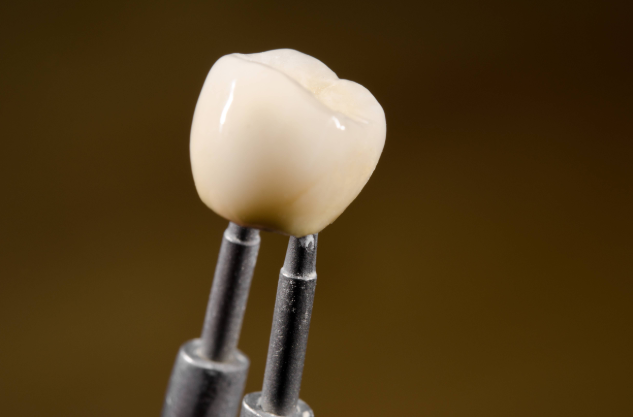Difference Between Crown & Implant | Dentist Van Nuys CA