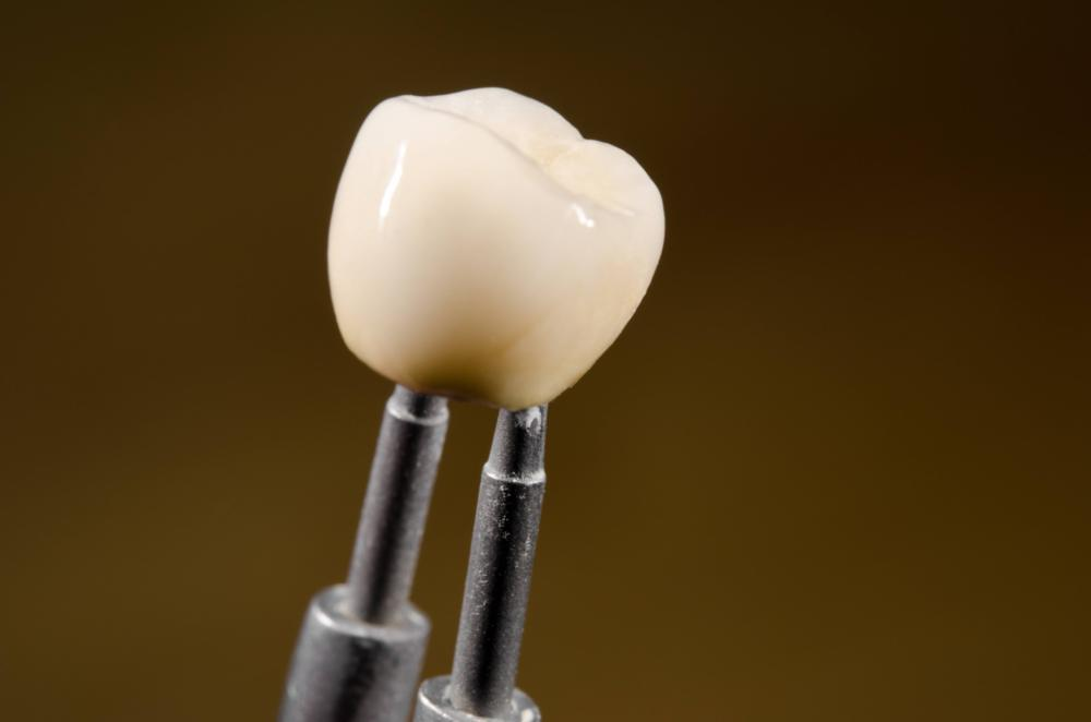 Dental Implant in Van Nuys