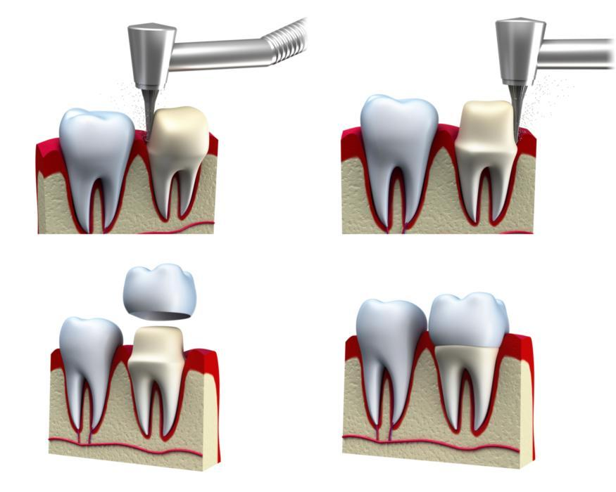 What are Dental Crowns | Saticoy Plaza Dentistry