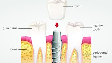 Permanent Tooth Replacement in Van Nuys CA | Dental Implant Diagram
