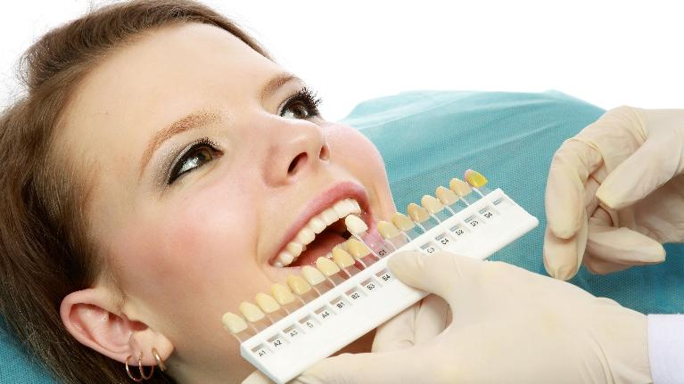 Teeth Whitening | Saticoy Plaza Dentistry
