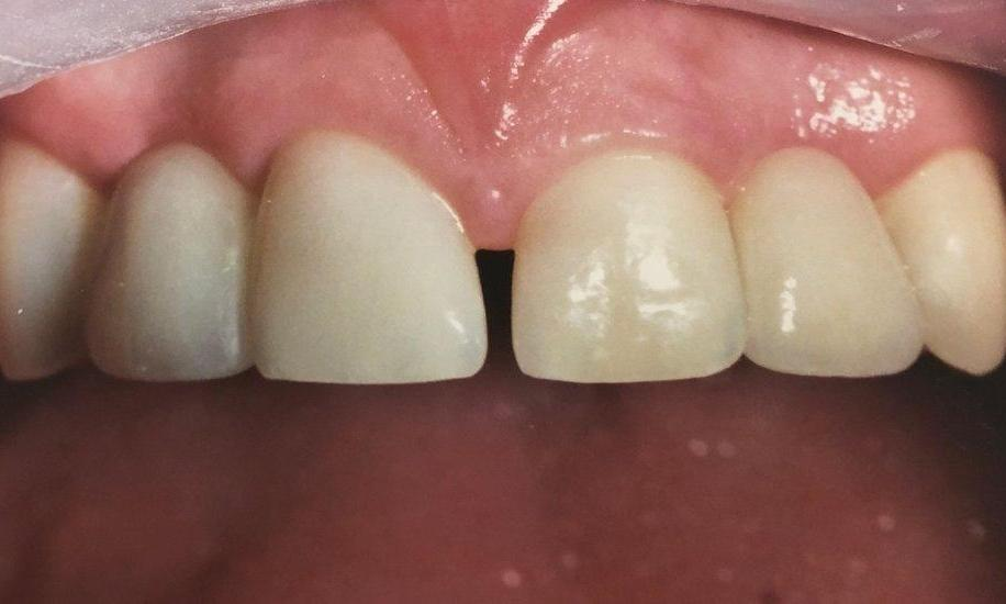 Dental Bridges in Van Nuys