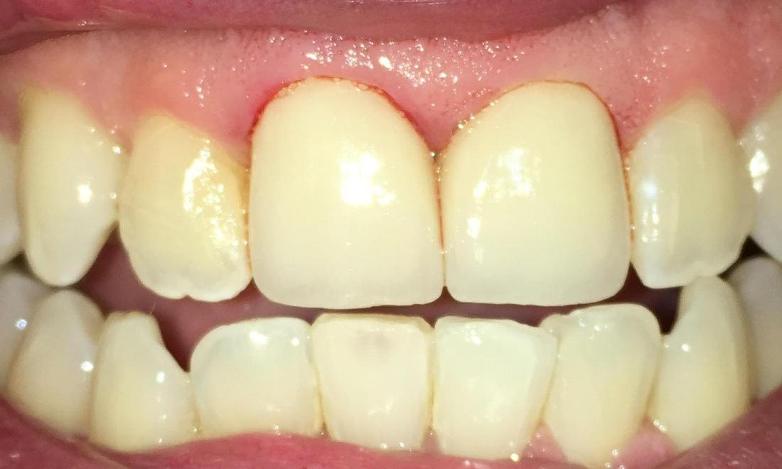 Full Porcelain Crowns and Teeth Whitening