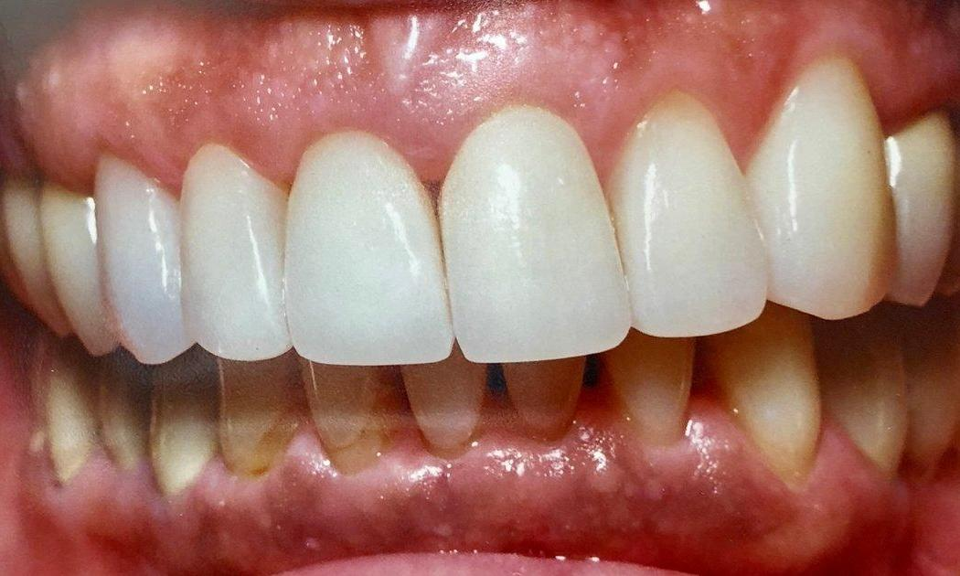 Dental Restorations with Crowns in Van Nuys | After