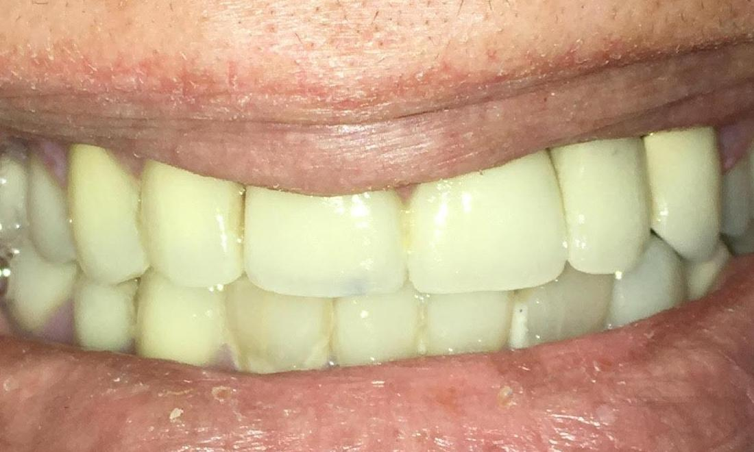 Implant and Porcelain crowns