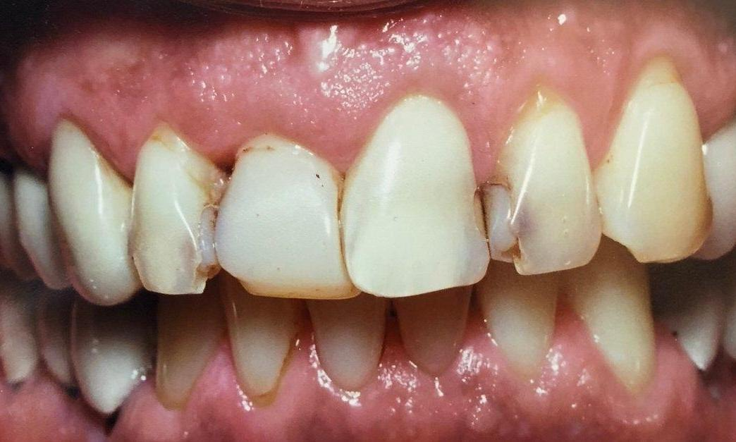 Dental Restorations with Crowns in Van Nuys | Before