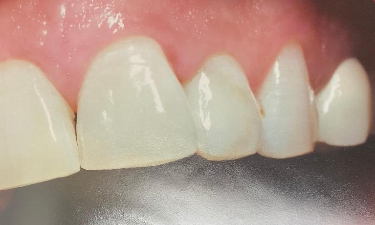 Cavity-Removal-of-Front-Tooth-with-White-Filling-After-Image