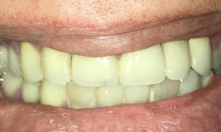 Implant-and-Porcelain-crowns-After-Image
