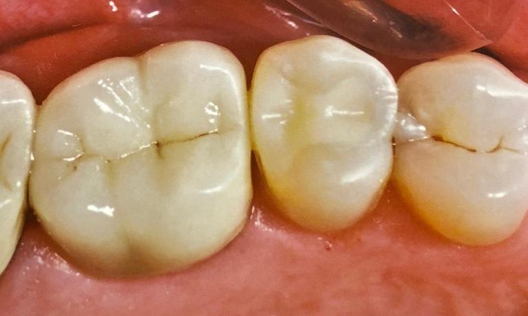 Porcelain-Dental-Crown-and-White-Filling-After-Image