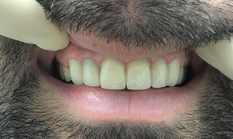 Front-Teeth-Porcelain-Crowns-After-Image