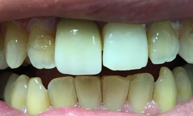 Full-Porcelain-Crowns-and-Teeth-Whitening-Before-Image