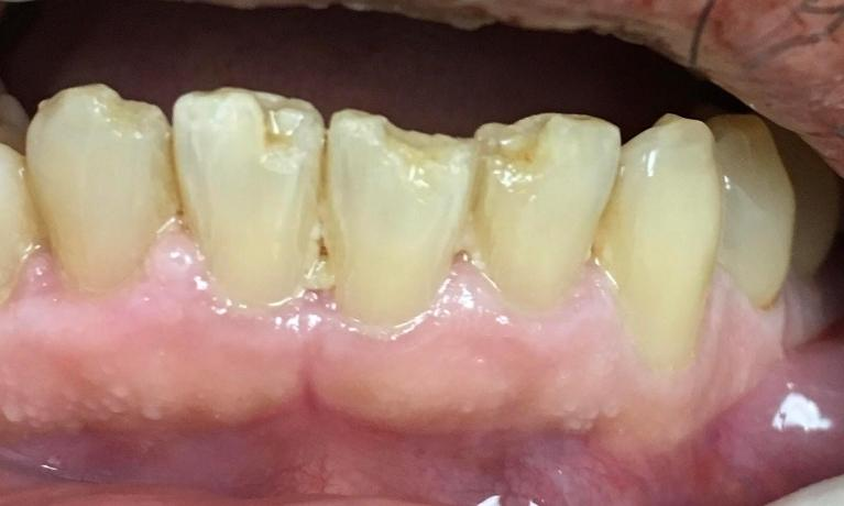 Cosmetic-Tooth-Colored-Fillings-Before-Image