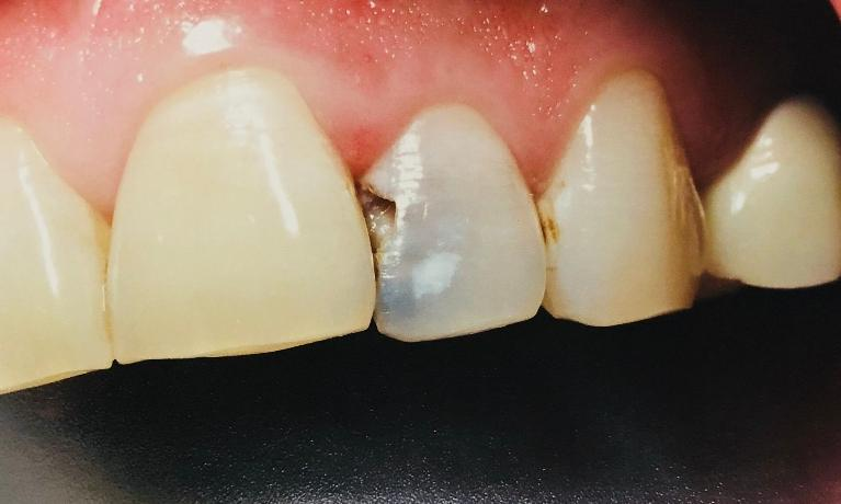 Cavity-Removal-of-Front-Tooth-with-White-Filling-Before-Image