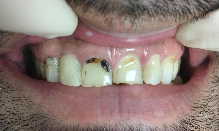 Front-Teeth-Porcelain-Crowns-Before-Image