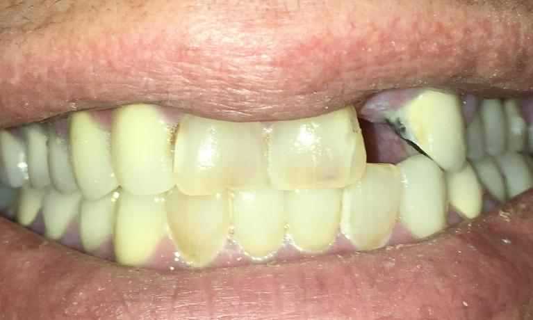 Implant-and-Porcelain-crowns-Before-Image